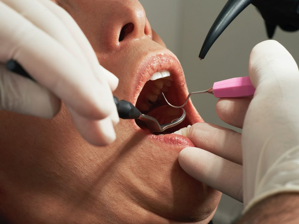 4 Tools To Know Around Your Dentist's Office